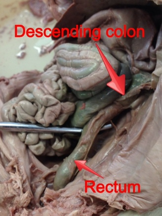 Large Intestine Hamlet Dissected